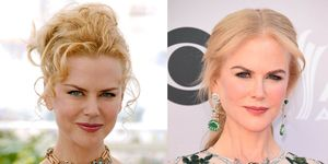 Nicole Kidman Eyebrows Before And After