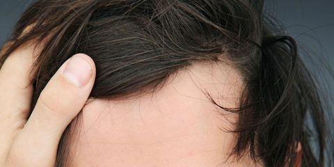 Hair, Facial hair, Lip, Cheek, Hairstyle, Eye, Chin, Forehead, Eyebrow, Facial expression,