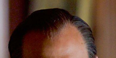 Head, Ear, Lip, Cheek, Mouth, Hairstyle, Chin, Collar, Forehead, Dress shirt,
