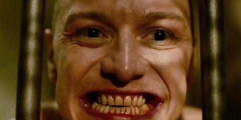 Lip, Skin, Chin, Forehead, Eyebrow, Tooth, Jaw, Organ, Temple, Tongue,