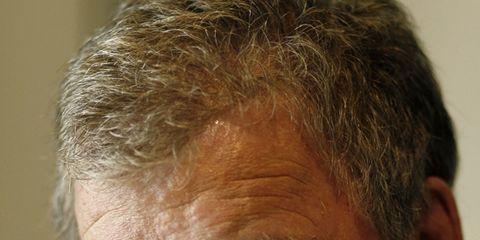 Ear, Lip, Cheek, Eye, Skin, Chin, Forehead, Eyebrow, Jaw, Wrinkle,