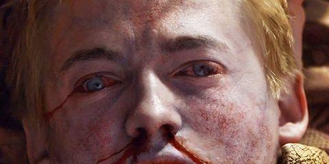 Face, Chin, Human, Zombie, Fictional character, Flesh, Movie, Disfigurement, Wrinkle, Fiction,