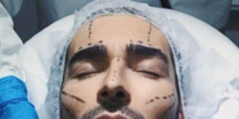 Face, Head, Facial hair, Nose, Forehead, Skin, Chin, Beard, Human, Cheek,