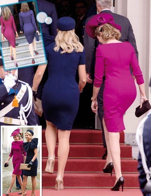 Clothing, Leg, Dress, Human body, Shoulder, Human leg, Joint, Outerwear, Magenta, Purple,