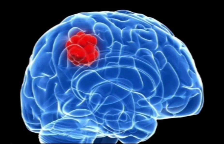Así se construye un cerebro