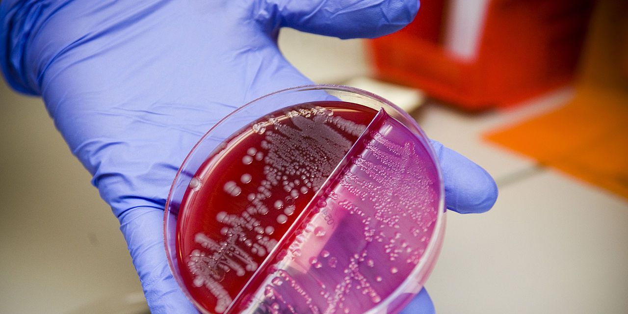 Crean una bacteria capaz de absorber CO2 y producir energía