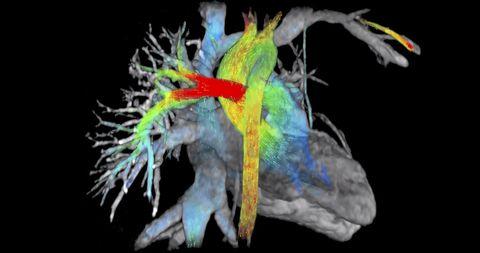 a538daf5c ... los accidentes cardiovasculares son la principal causa de muerte en el  mundo desarrollado. Cuando una persona sufre un ataque al corazón
