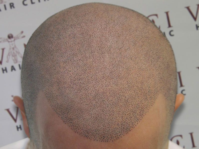Bald Men Are Getting Head Tattoos Cosmetic Tattoos Fill In Bald