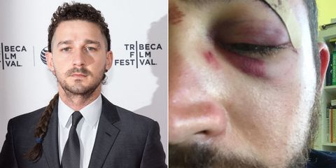 Shia LaBeouf Left a Voicemail for the Man Who Got Punched for Looking Like Shia LaBeouf