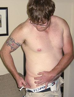 Side Effects of Steroids - Side Effects of Taking Anabolic Steroids