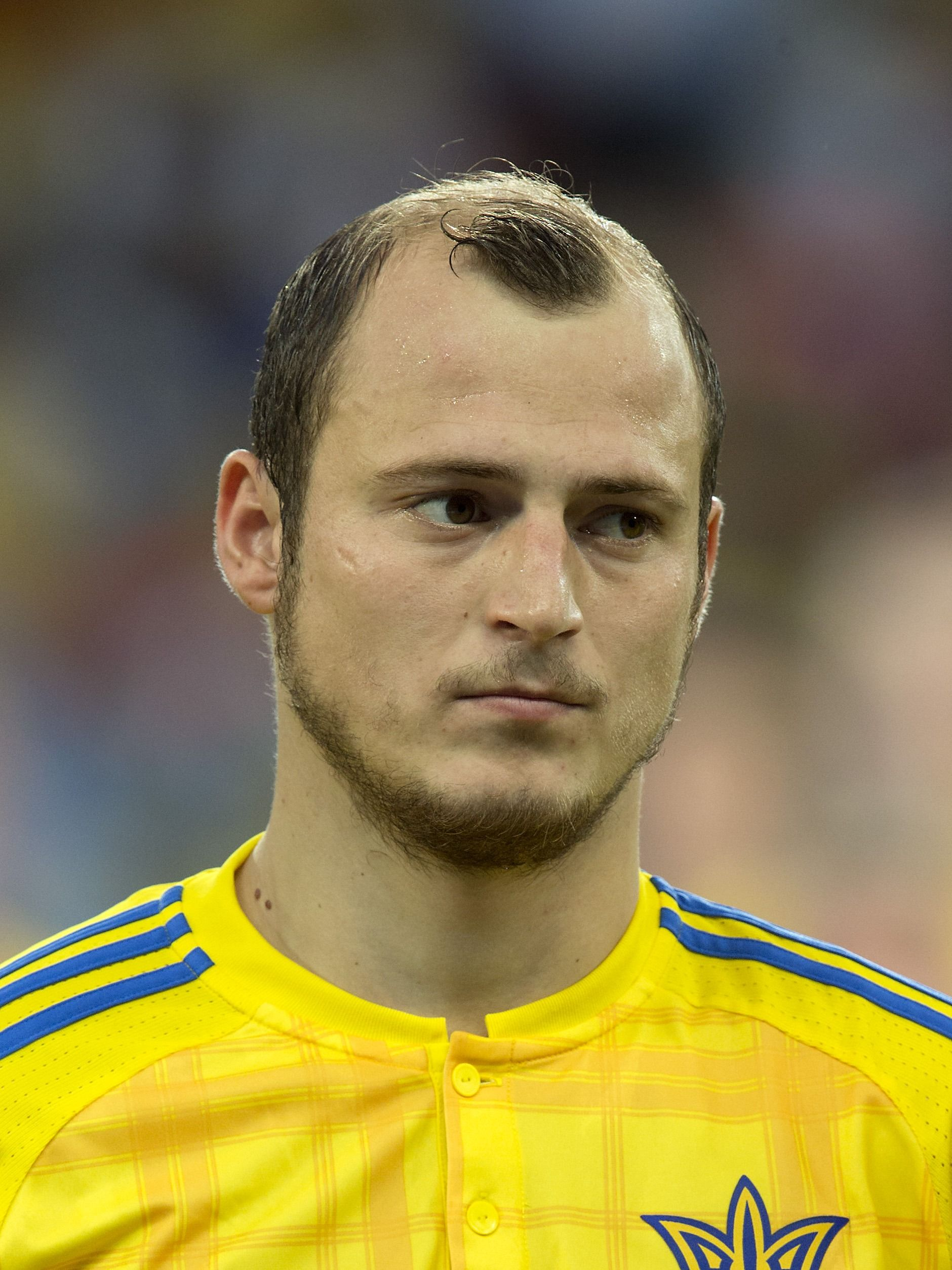 The 10 Worst Haircuts Of Euro 2016