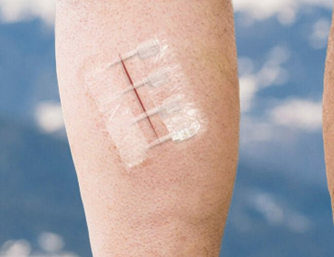 The Painless Emergency Alternative to Stitches Is Here