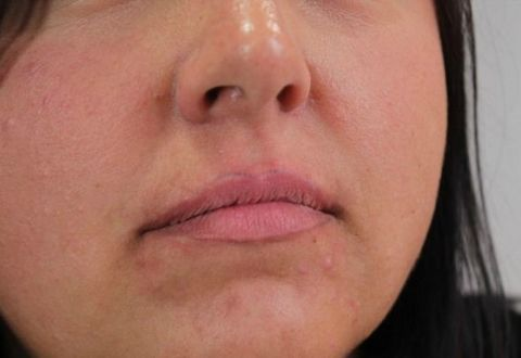 Woman Permanently Tattoos Crooked Lip Liner on Her Face - Extreme ...