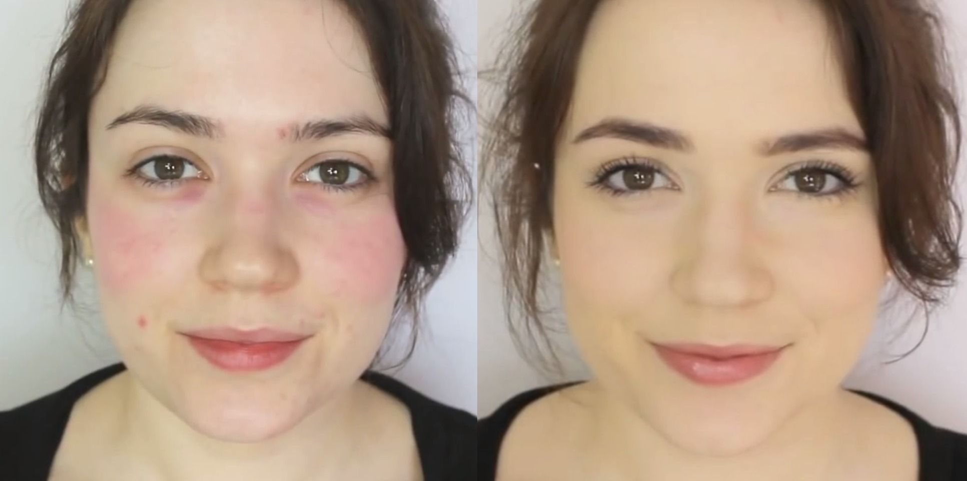 Makeup Tutorial For Concealing Redness