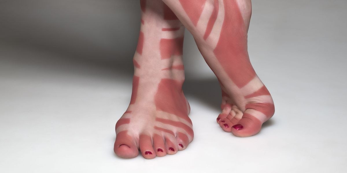 10 Crazy Tan Lines Sunscreen Designs And Tanning Photos