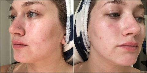 I Gave Up Popping My Pimples for a Week - Before and After
