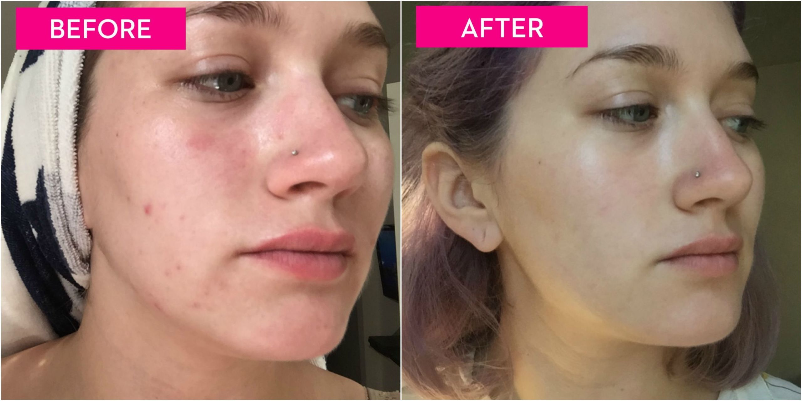 Why acne after facial