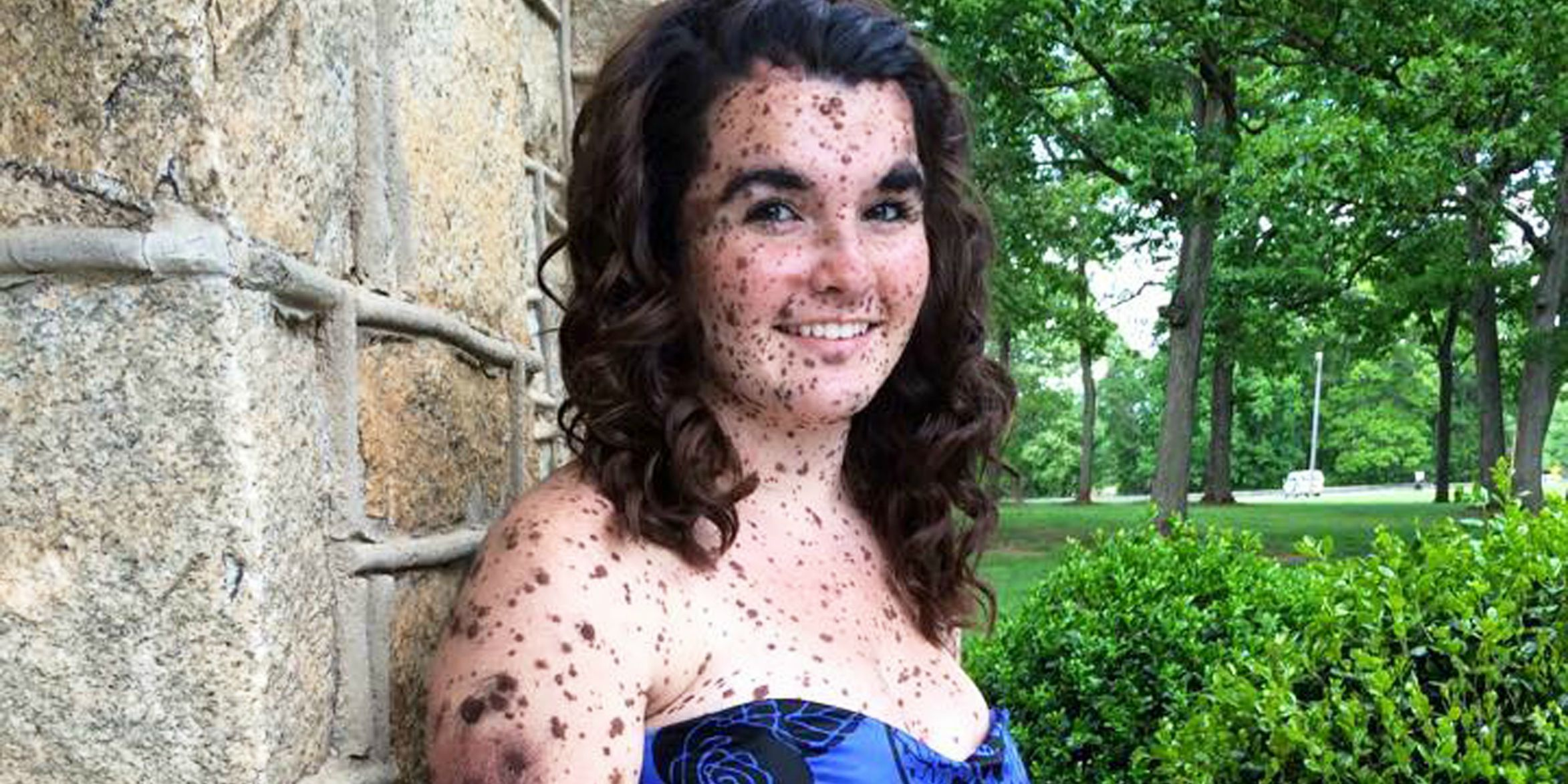 This Bullied Teen Covered in Birthmarks Isnt Ashamed of Them Anymore