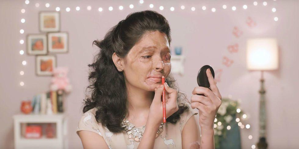 Brave Acid-Attack Survivor Does Beauty Tutorials to Raise Awareness