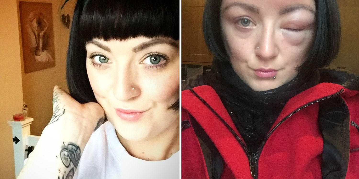Womans Face Swells Due To Horrifying Allergic Reaction To Hair Dye