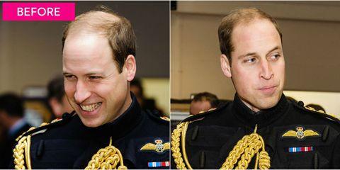 Ear, Chin, Eyebrow, Collar, Uniform, Buzz cut, Crew cut, Award, Military rank, Medal,