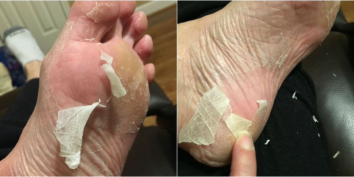 Baby Foot Peel Review What To Know About Baby Foot Peel And If