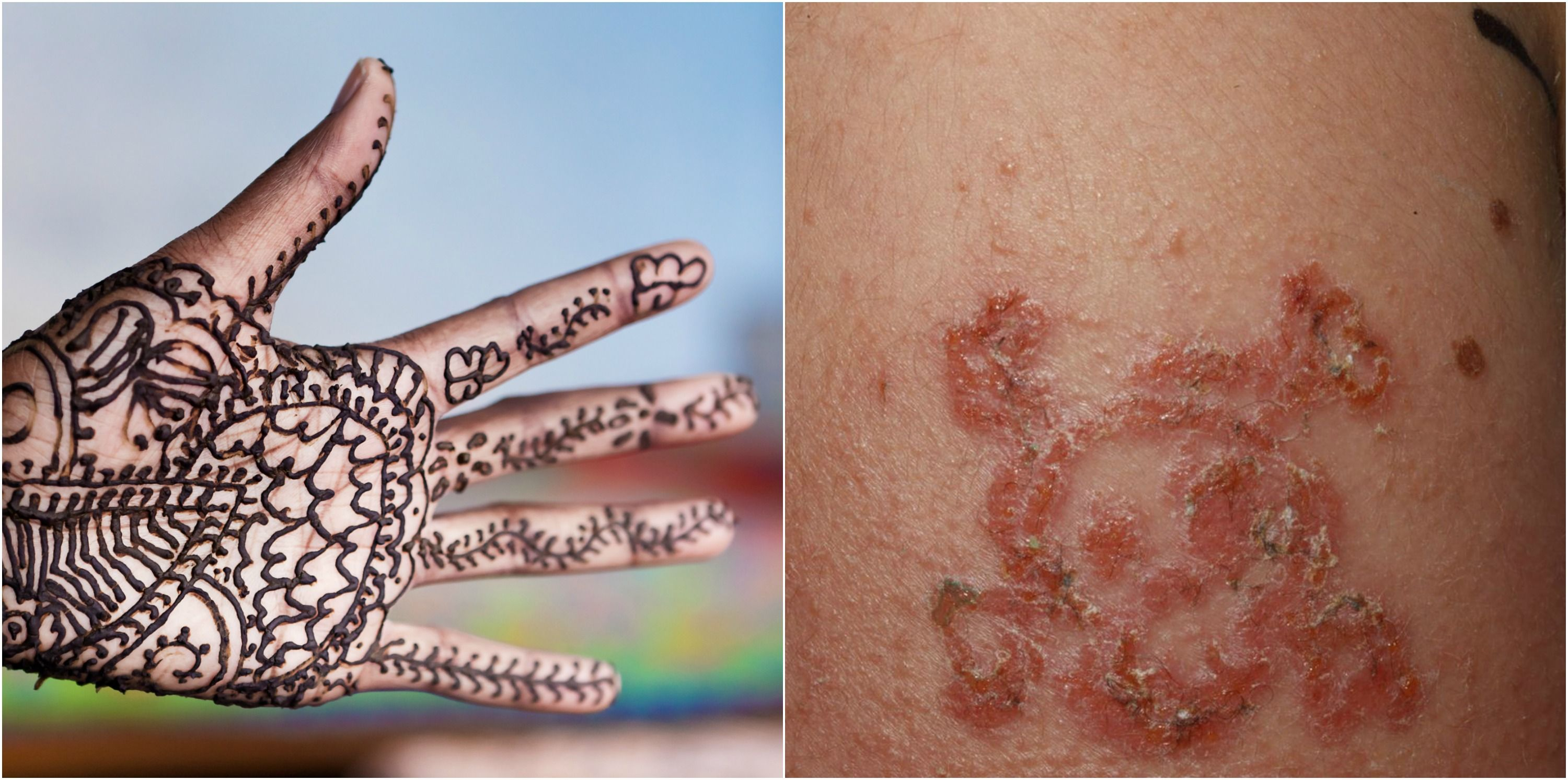 10 Year Old Boy Suffers Allergic Reaction To Black Henna Tattoo Photos