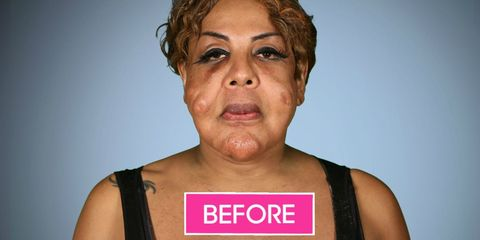 Woman With Cement Injected In Face Gets Help On Botched