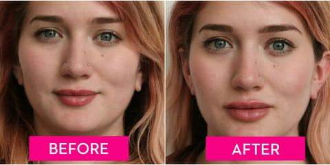 A Guide to Lip Injections, From the Cost to How They Feel