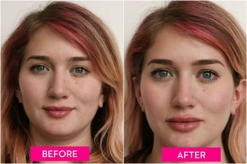A Guide to Lip Injections, From the Cost to How They Feel - Before