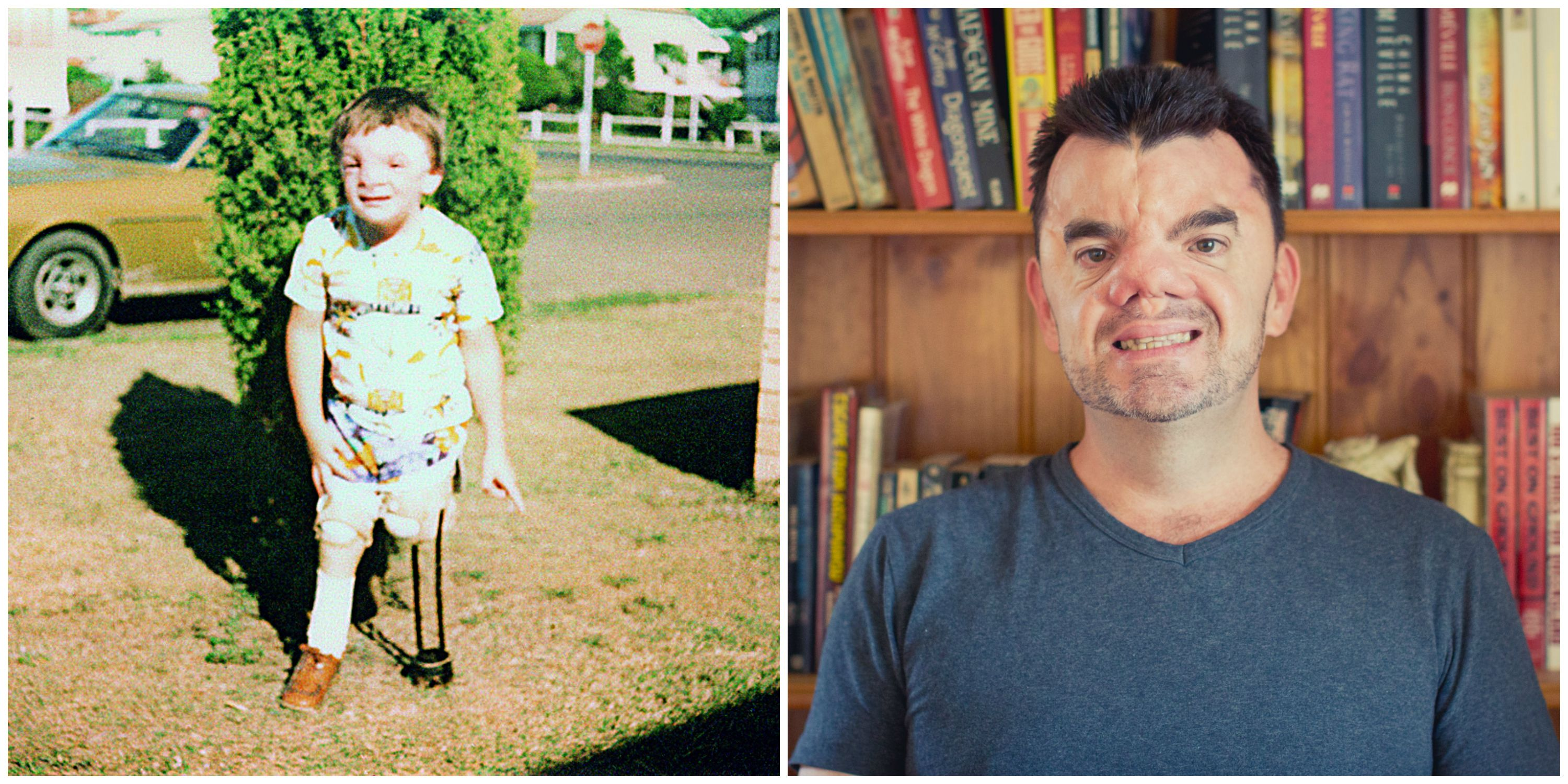 Parenting a Child with Disabilities - Robert Hoge Ugly Essay