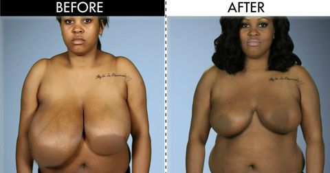 44fe796f05ec4 Woman With Dramatically Uneven Breasts Gets Surgery to Correct Them ...