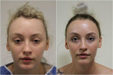 Diva Hollands Follicular Unit Transplantation - Traction Alopecia