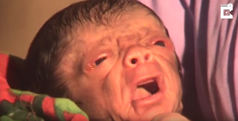 Baby Born With the Face and Body of An Old Man - Progeria ...