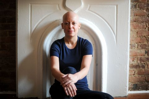 Dating with alopecia universalis
