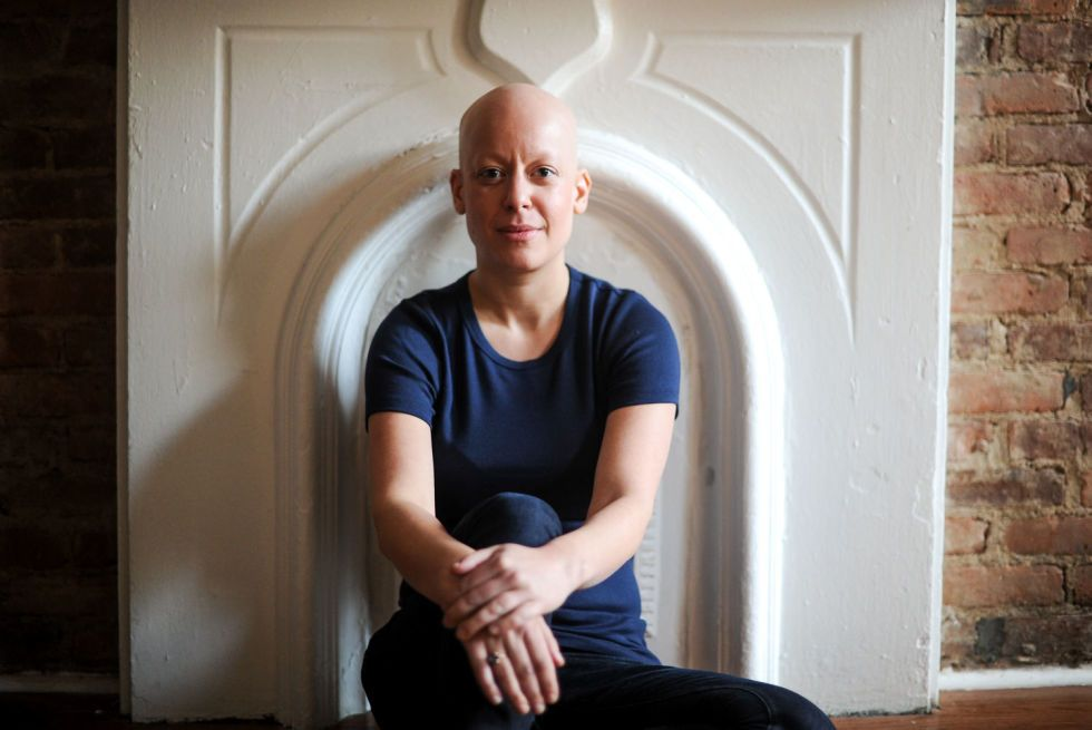 alopecia dating stories