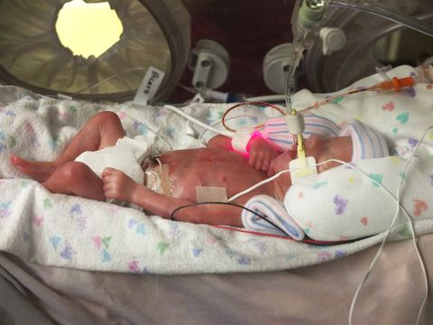 premature daughter baby