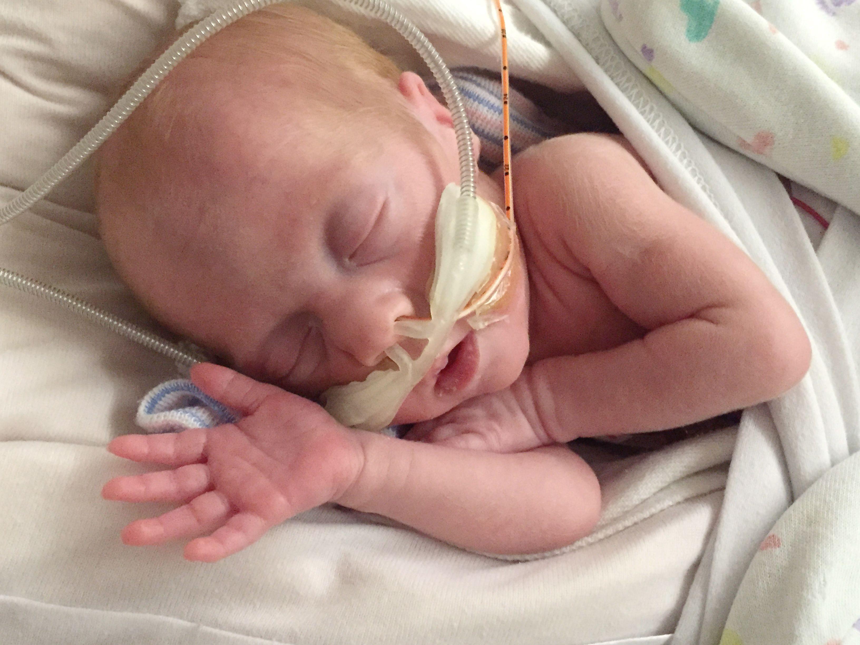 premature baby growing
