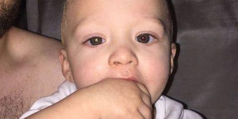 Child, Face, Nose, Cheek, Skin, Baby, Lip, Chin, Eyebrow, Head,