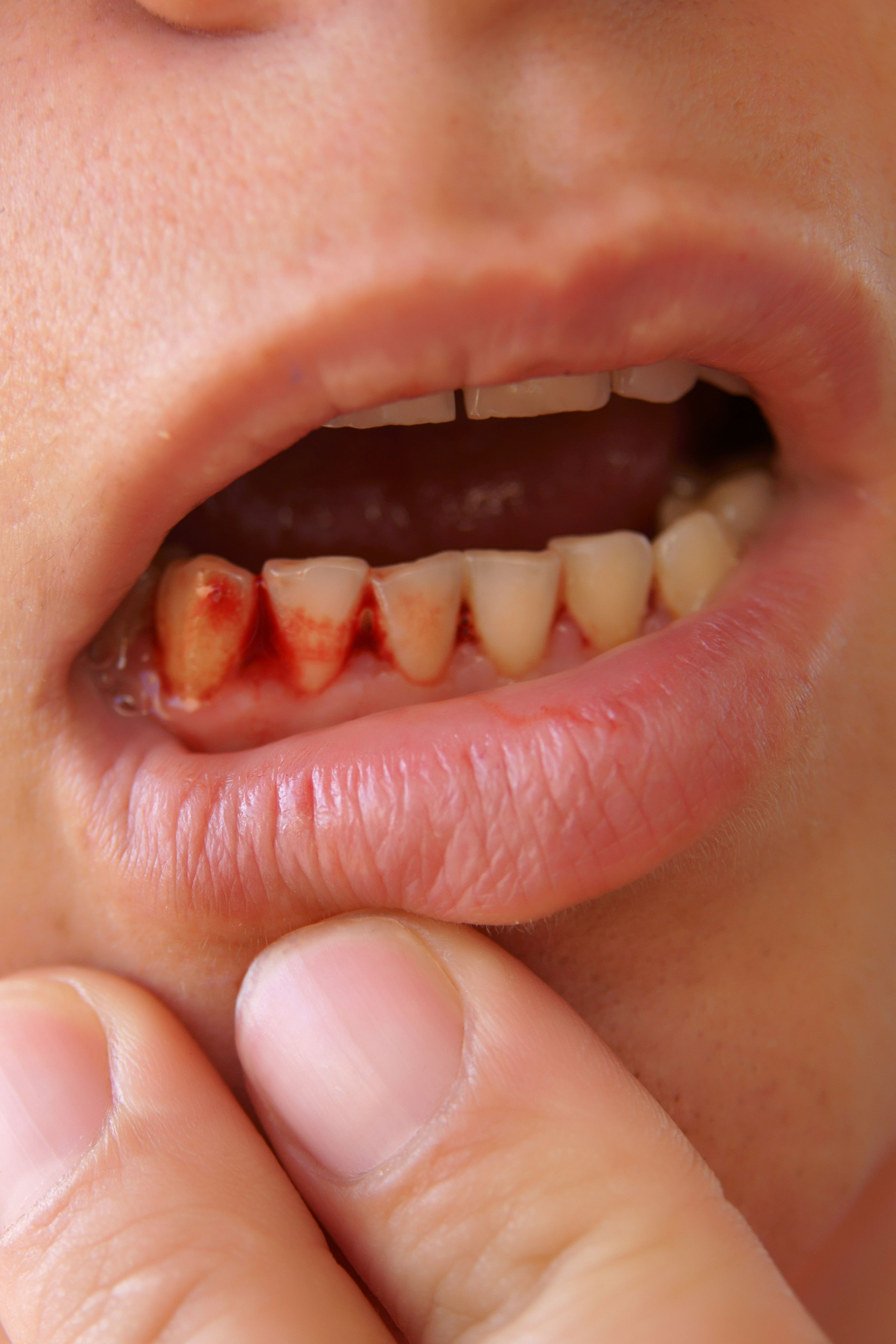 What Teeth Problems Can Tell You About Your Health - Dental Problems