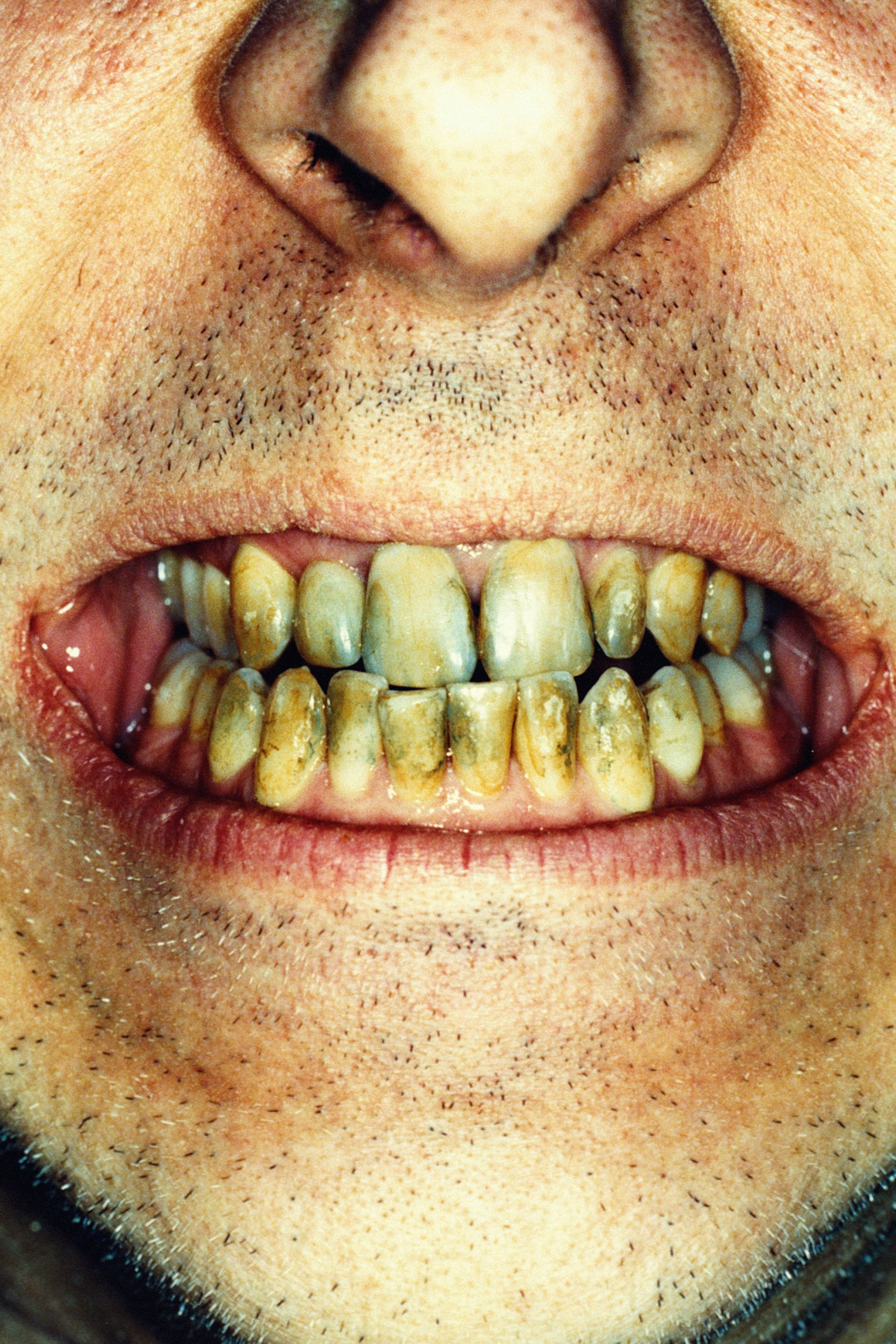 Woman with rotten teeth