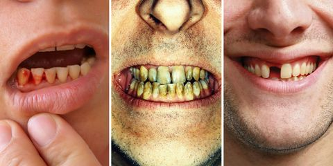 What Teeth Problems Can Tell You About Your Health - Dental