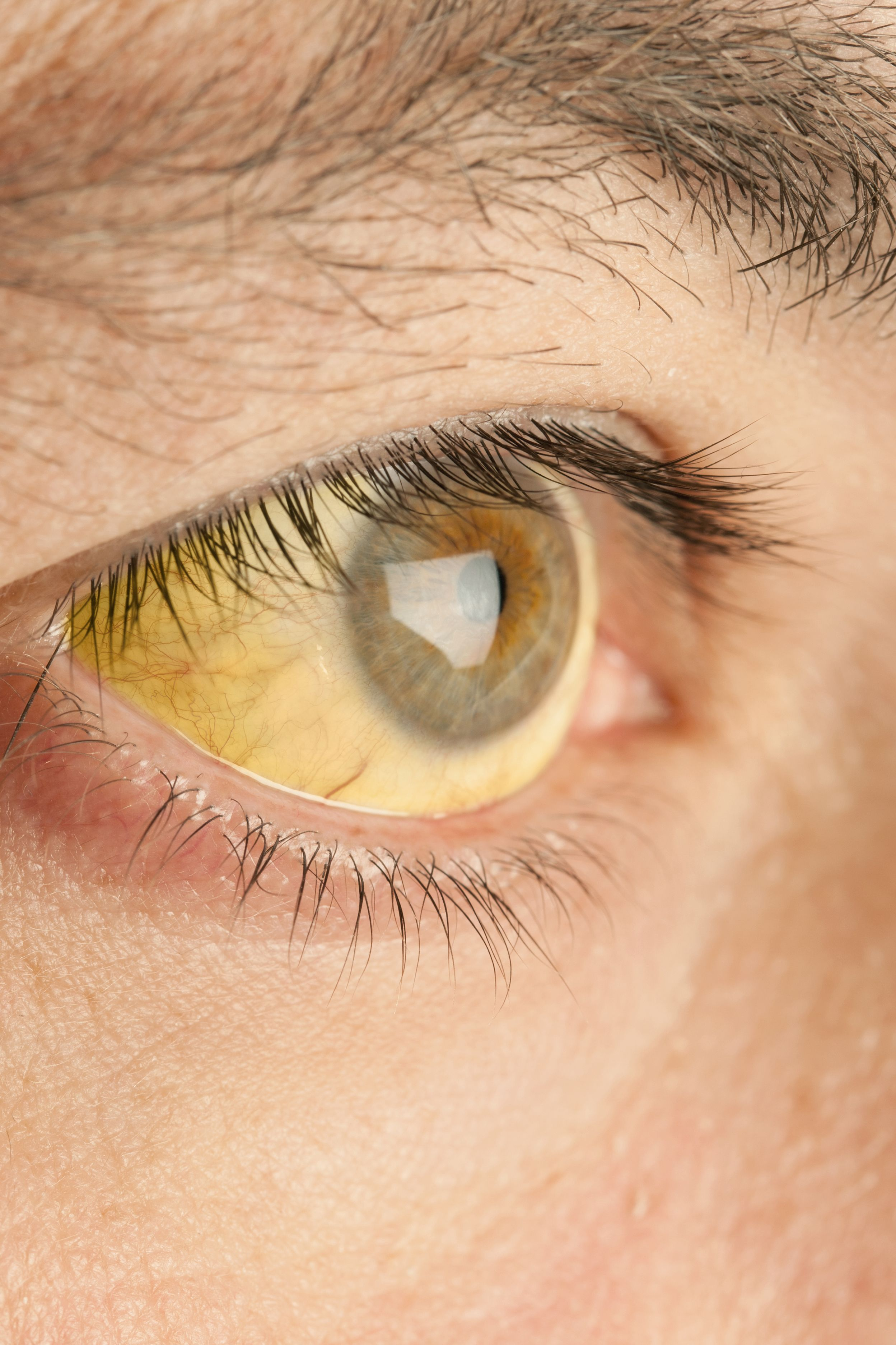 a1072773741 What Your Eyes Can Tell You About Your Health - Eye Problems