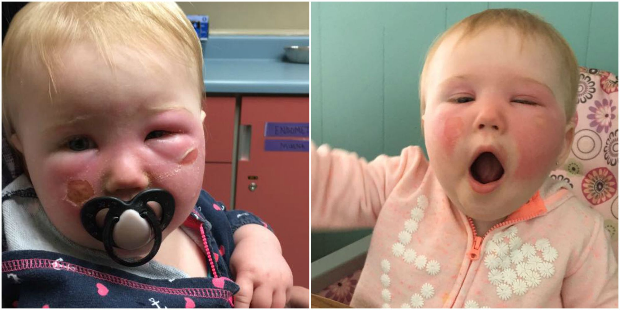 Mom Claims Banana Boat Sunscreen Severely Burned Her Toddler