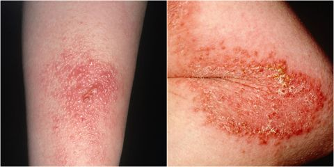 How To Get Rid Of Poison Ivy Rash Best Poison Ivy Remedies,Poison Ivy Leaf Drawing