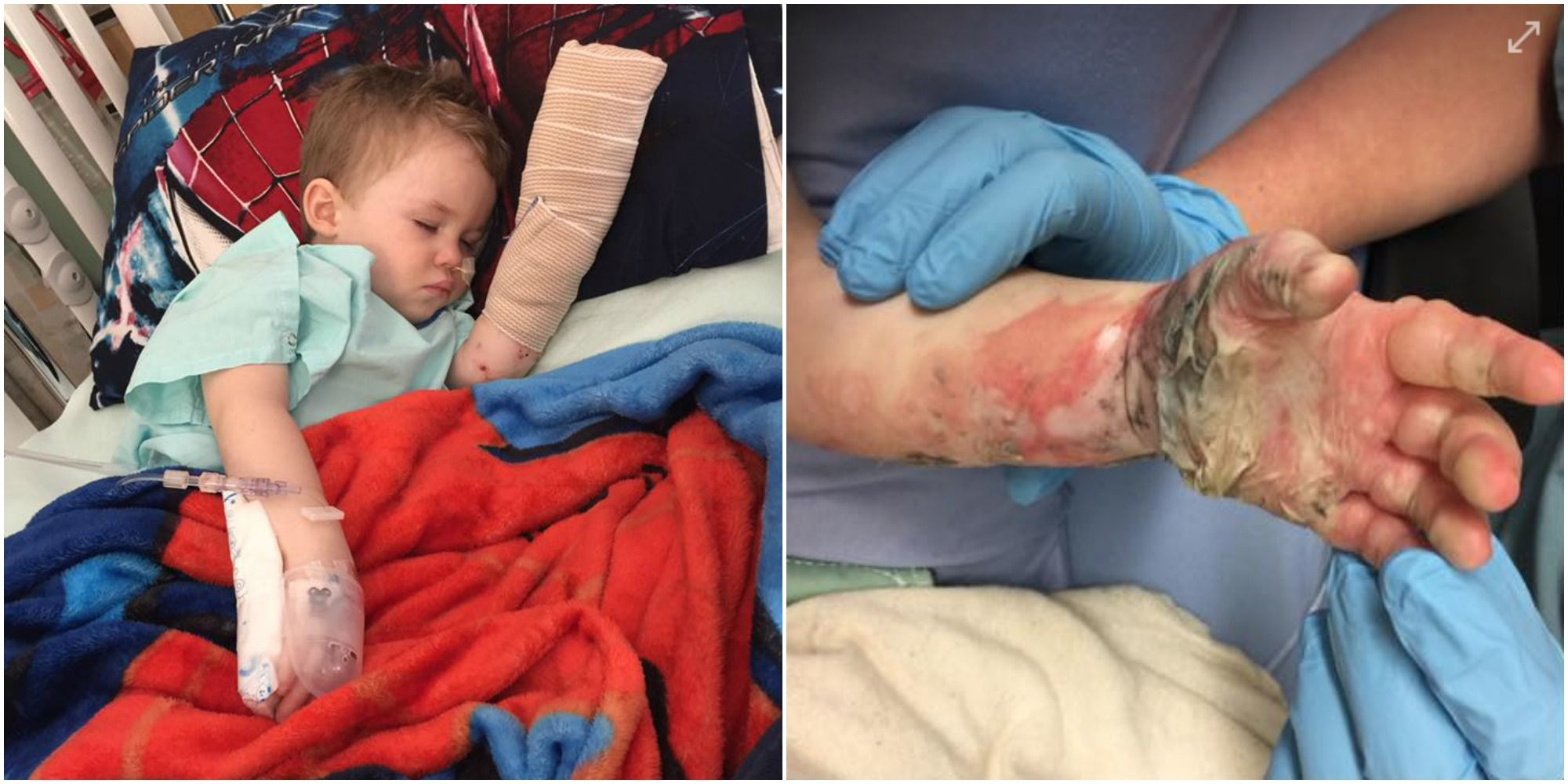 Toddler Suffers Horrific Burns From Fire Pit Hours After It Was Used