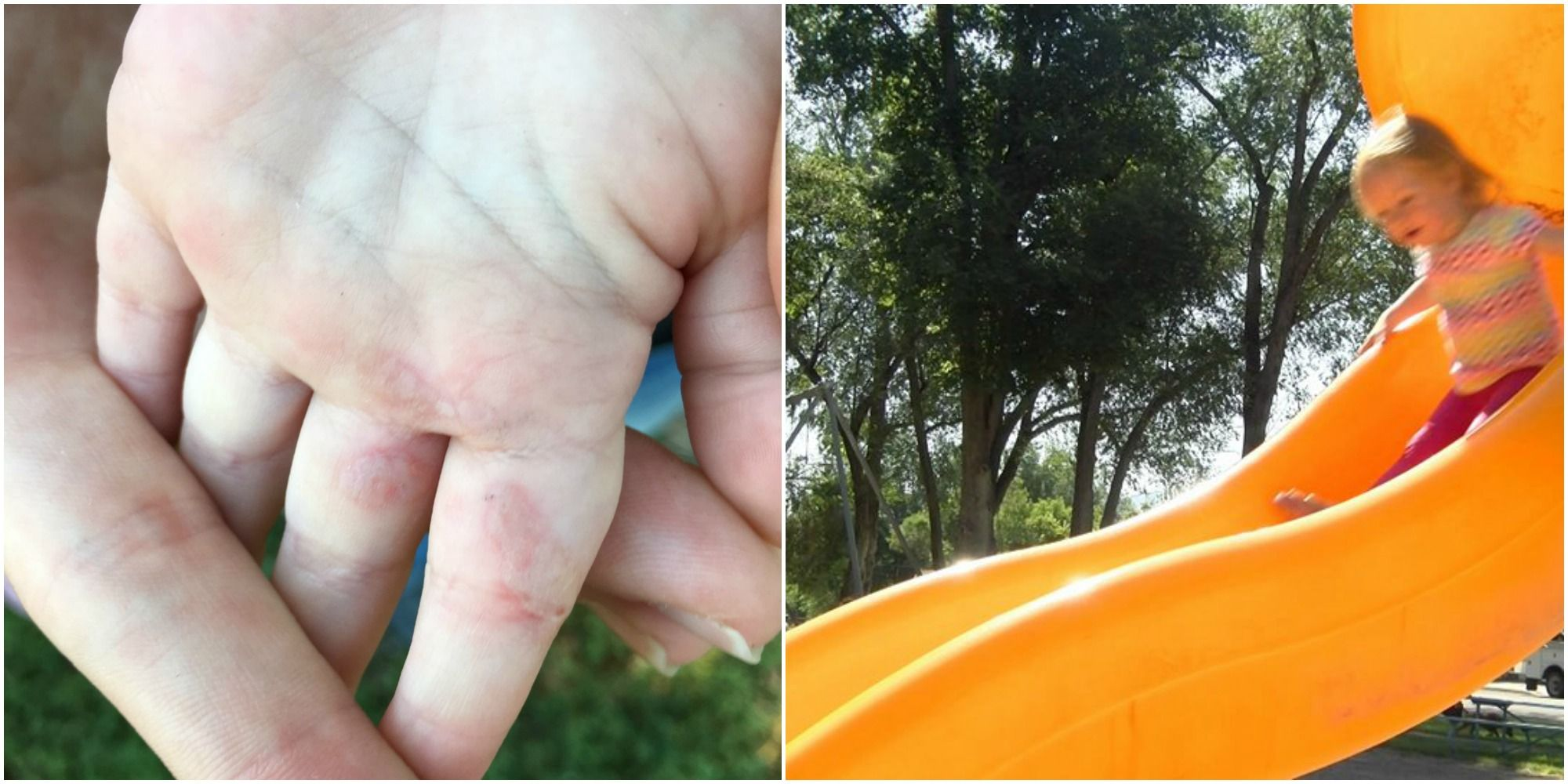 Toddler Suffers Second-Degree Thermal Burns From Plastic Playground Slide