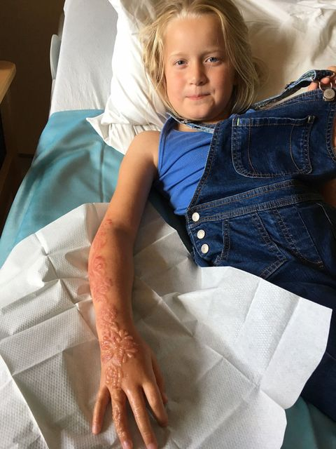 7481d13f5 Black Henna Tattoo Causes Chemical Burns on Little Girl Who May Be ...