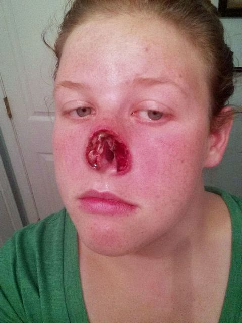 Removing Nose Ring With Ball