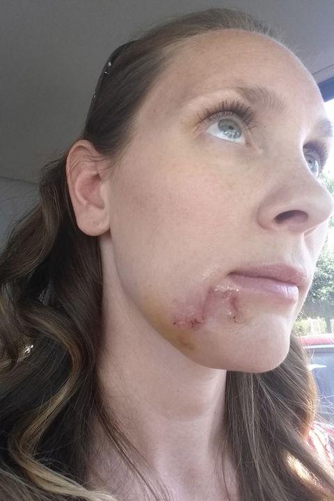 Mom Dismissed Skin Cancer as Blackhead - Kari Cummins